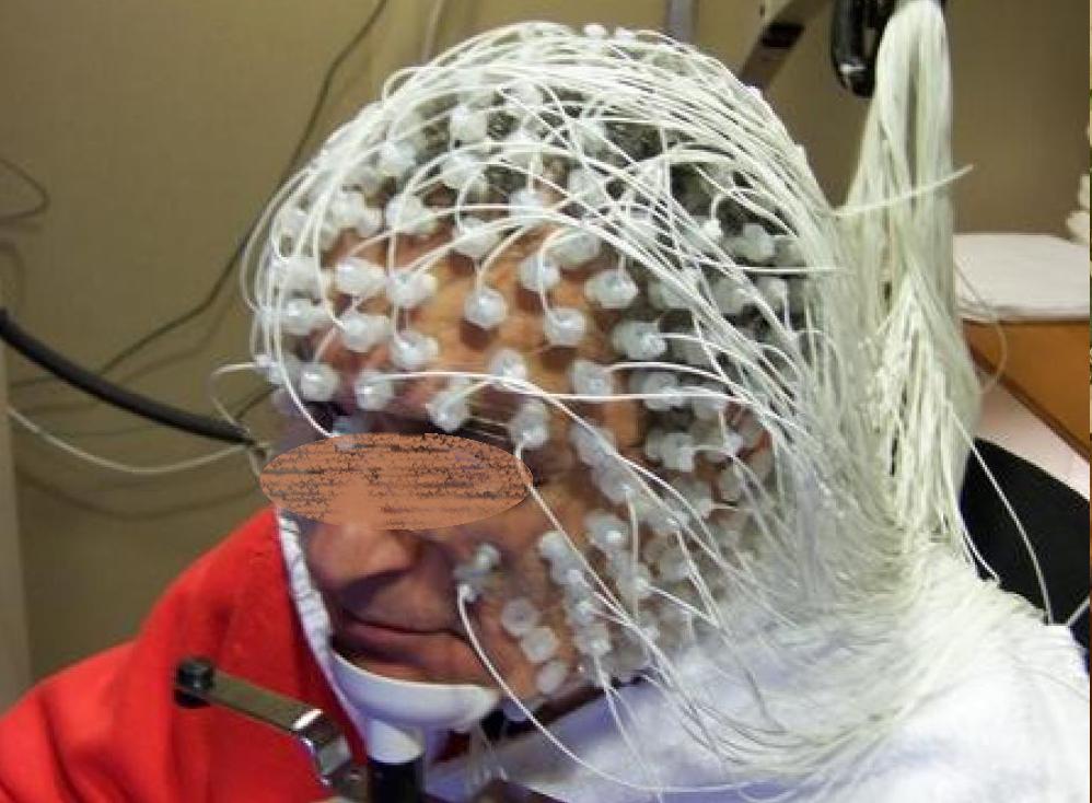 Электро осциллограмма головного мозга
