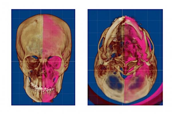 Хирургическое лечение пациента с посттравматическими деформациями лица с использованием цифровых и инновационных технологий в клинике челюстно-лицевой хирургии и хирургической стоматологии Военно-медицинской академии