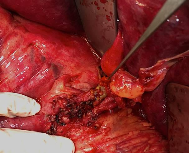 18. Сформирован артериальный анастомоз