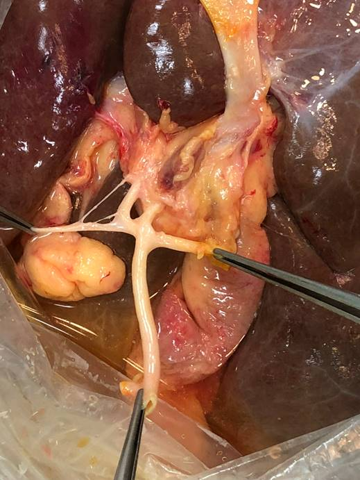 3. Подготовка донорской печени к трансплантацииBack-table