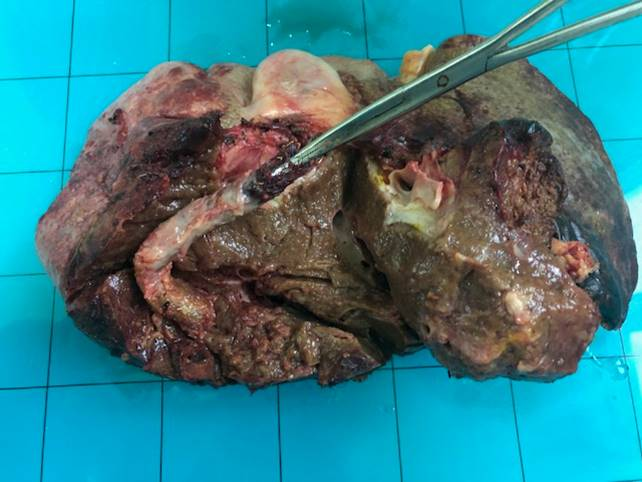 9. При рассечении печени в правой ветви воротной вены, интрапаренхиматознои в просвете правой печеночнйо вены расположен стент-графт  - трансюгулярный внутрипеченочный портосистемный шунт  (TIPSS)