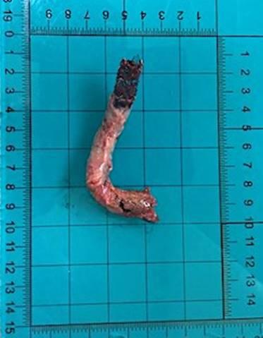 10. Извлеченный из удаленной печени стент-графт  - трансюгулярный внутрипеченочный портосистемный шунт  (TIPSS)