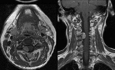 Сведения о выполненном в клинике нейрохирургии оперативном вмешательстве с использованием инновационных методов лечения и диагностики