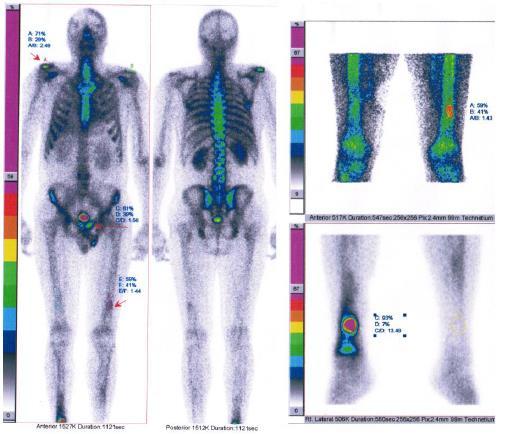 Диагностика острой обструкции левого атриовентрикулярного отверстия недифференцированной плеоморфной саркомой