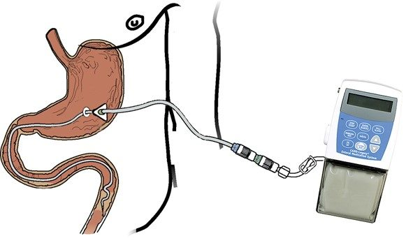 Успешная реализация инновационного метода лечения болезни Паркинсона с помощью помпы для доставки леводопа-карбидопа интестинального геля (Дуодопа)