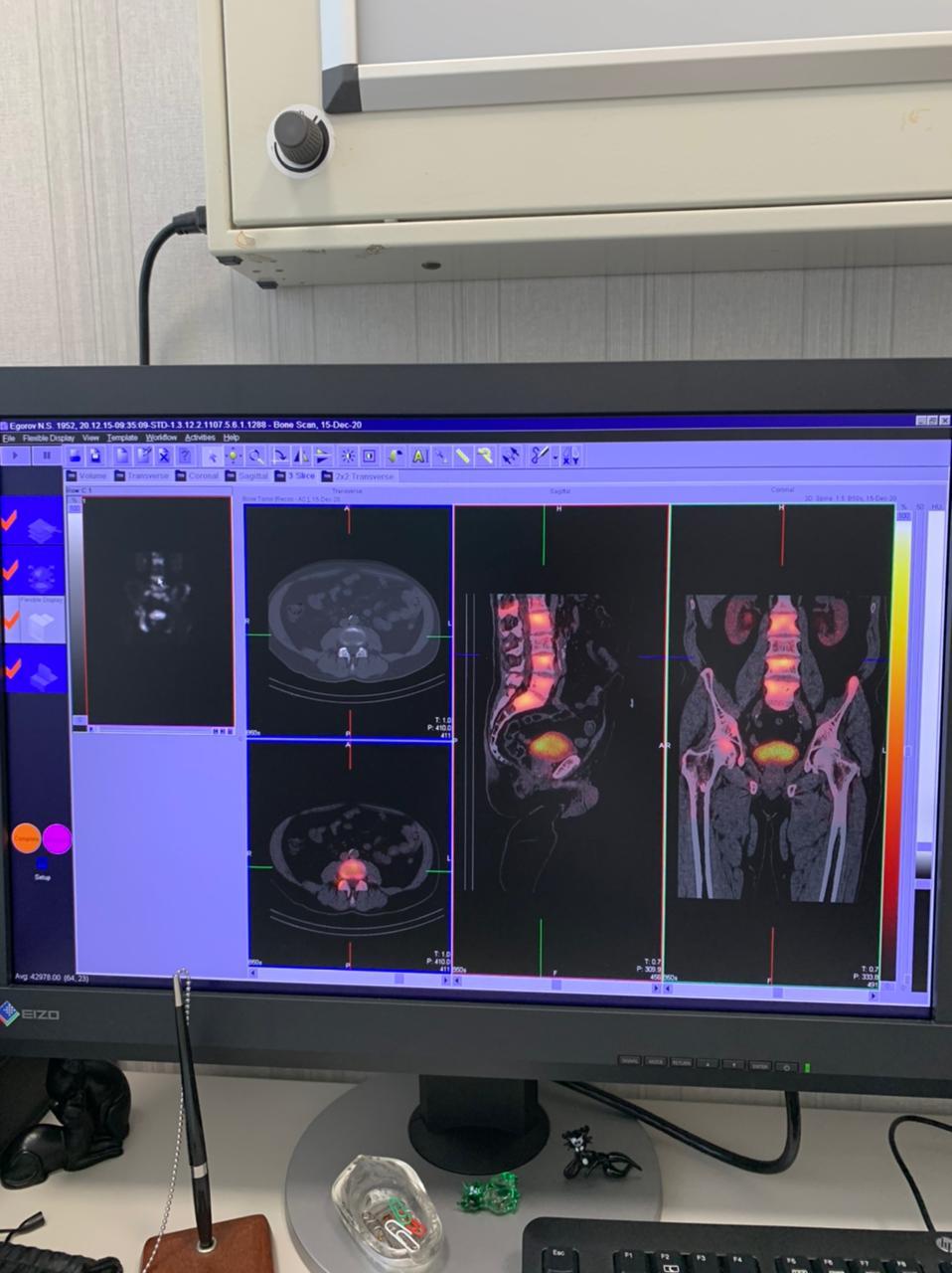 В Военно-медицинской академии внедрена новейшая   система гибридной визуализации
